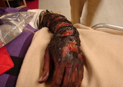 Burned hand prosthetic makeup
