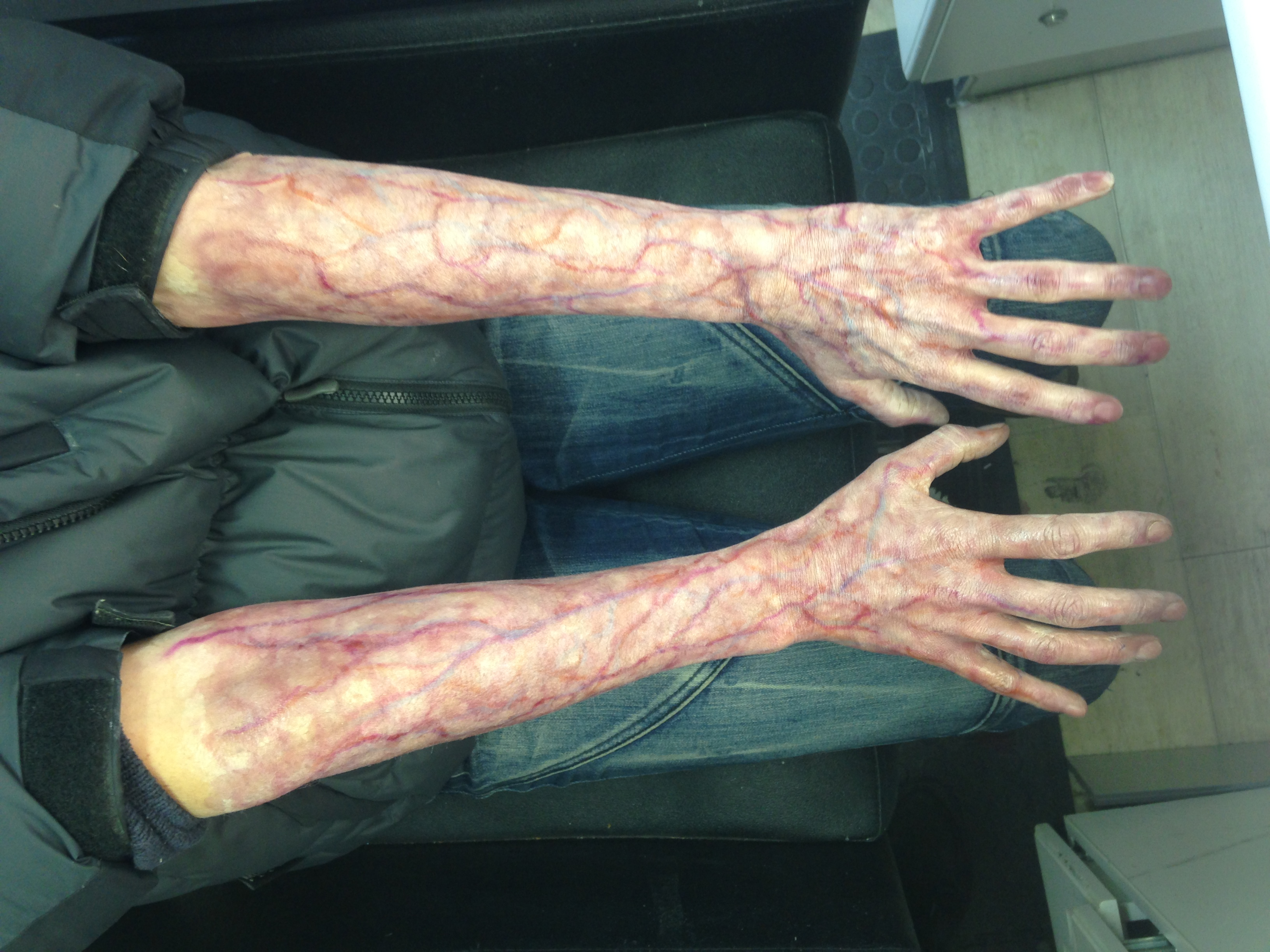 Prosthetic & SFX Makeup | The Creature Shop